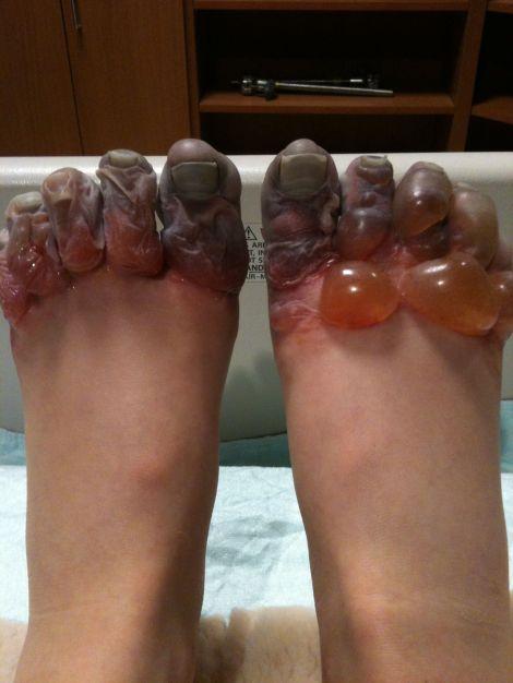 frostbite-feet