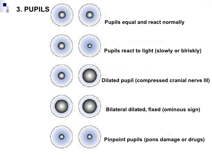 Image Gallery Neurological Checks Pupil Size