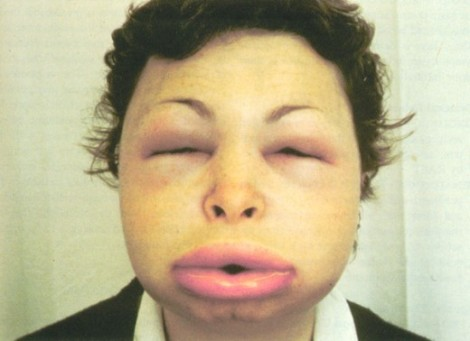 If there is a med that makes you look like this, we need to know.