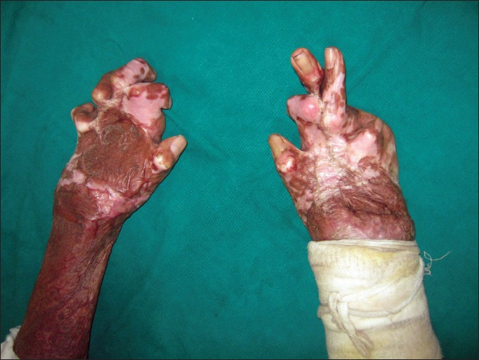 Sulfuric acid on hand