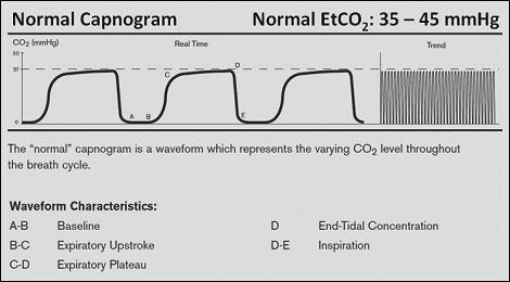 Source: http://www.zoll.com/medical-products/defibrillators/r-series/capnogram/