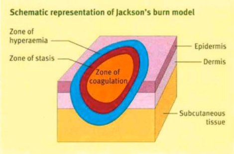 jacksons-burn-wound-model