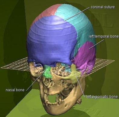 ct-skull