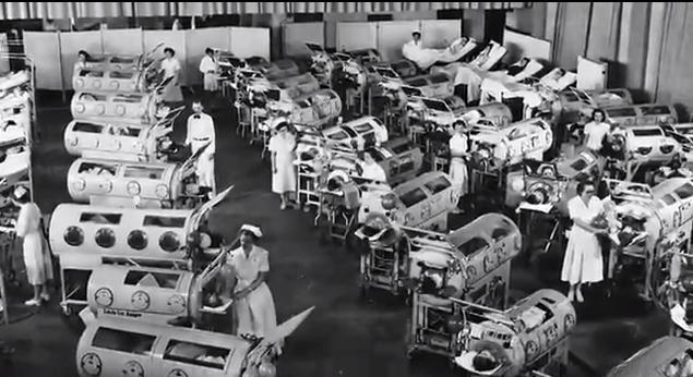 polio żelazne płuca